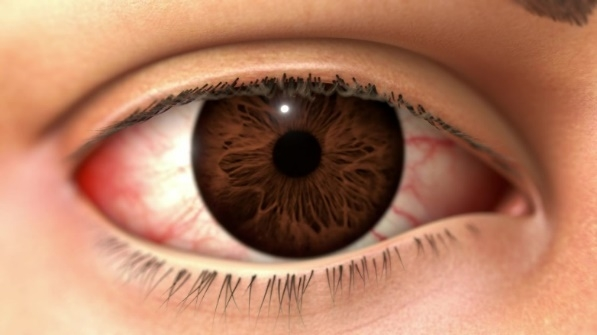 New treatment for severe corneal inflammation from DED now listed on PBS