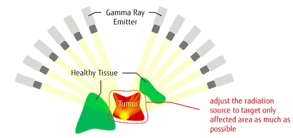 Fujitsu and University of Toronto Researchers Develop Quantum-Inspired Technology to Optimize Radiation Treatment Plans for Brain Tumors and Other Diseases