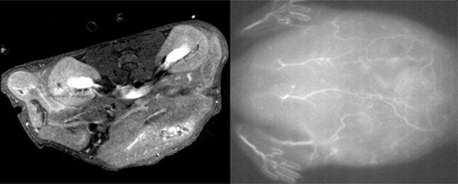 Size matters: Bimodal imaging receives nanoparticle enhancement
